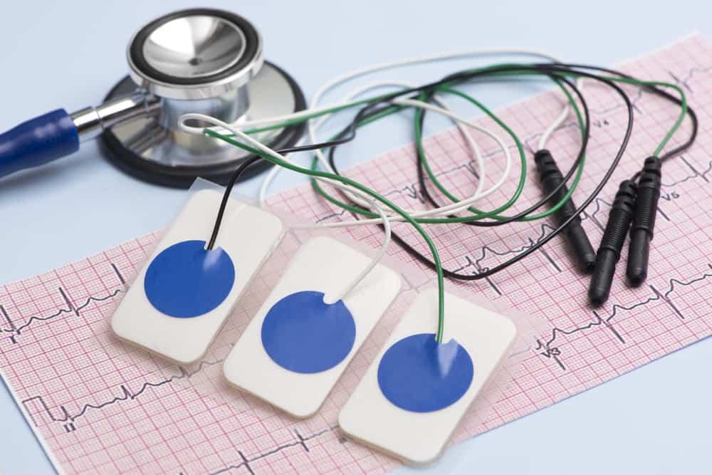 ECG(心電圖 )是什麼?